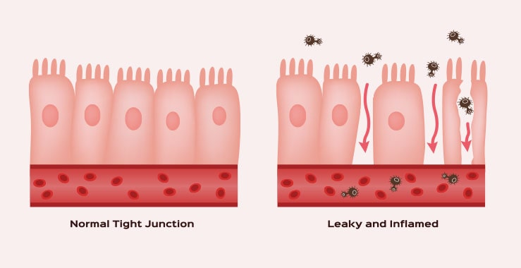 Leaky Gut or Leaky Gut Syndrome