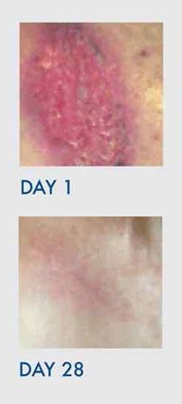 set of images showing improvement in Open Wound Burn After Radiation