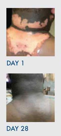 set of images showing improvement in Third-Degree Burn Scarring on the a man's neck, back, and ear