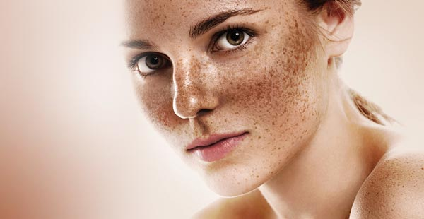 Melasma Treatments: Exploring Beyond Hydroquinone Creams for Hyperpigmentation