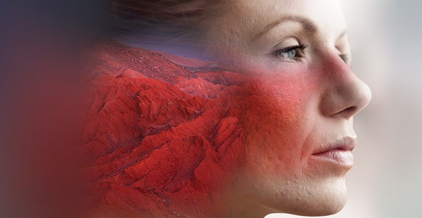 The Masks We Wear: Rosacea Triggers, Treatments, and Compounded Medications